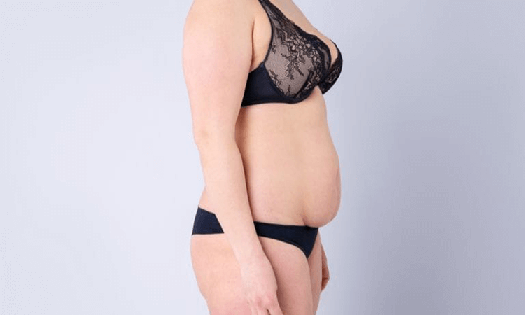 The 7 Best Bras For Saggy Breasts After Weight Loss